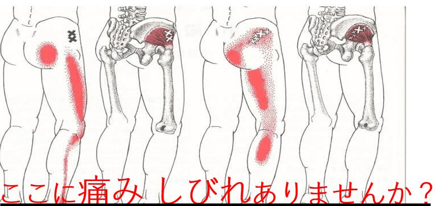 坐骨神経痛  50代~の女性に多い!?