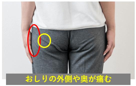 梨状筋症候群の症状