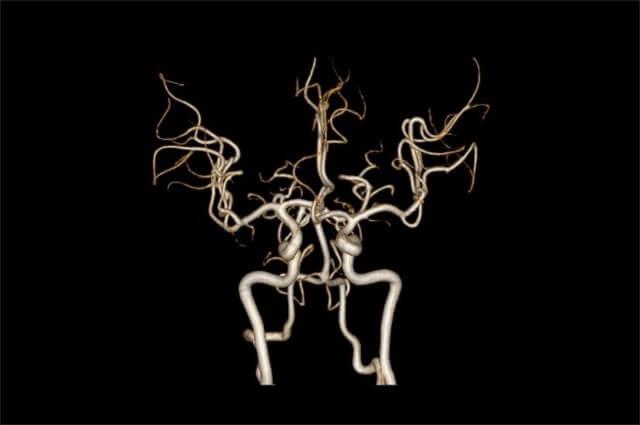 3Dで表された血管